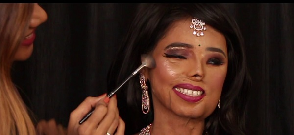 First-acid-attack-victim-who-became-commercial-model