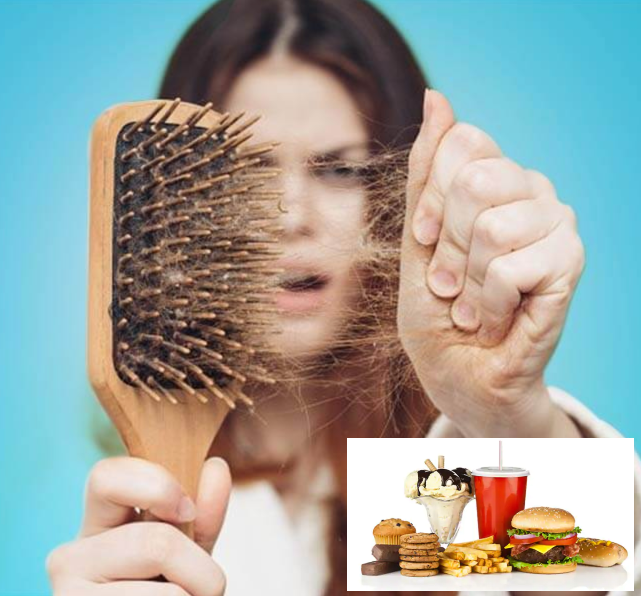 5 Foods That Could Cause Your Hair Loss – By Experts